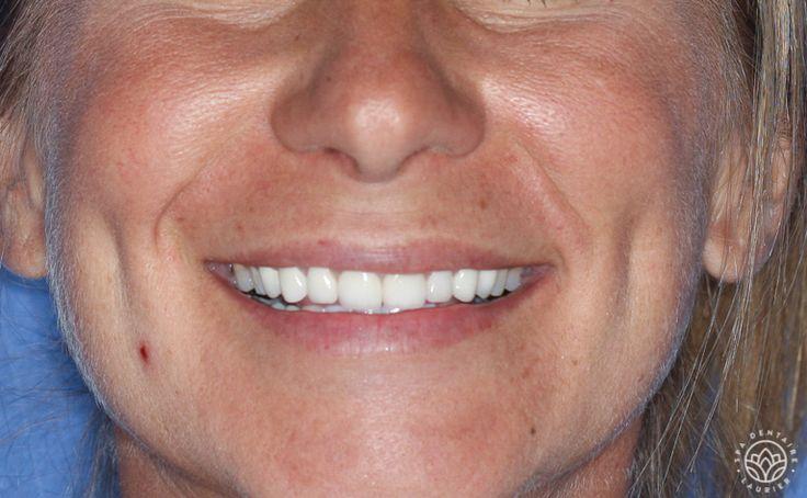 Après  Ses dents sont désormais protégées par vingt six couronnes de porcelaine et deux couronnes en or.