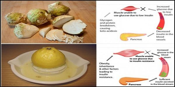 If You Have Diabetes, You Don`t Need A Cure, You Can Heal Yourself With These 2 Ingredients - http://eradaily.com/diabetes-dont-need-cure-can-heal-2-ingredients/