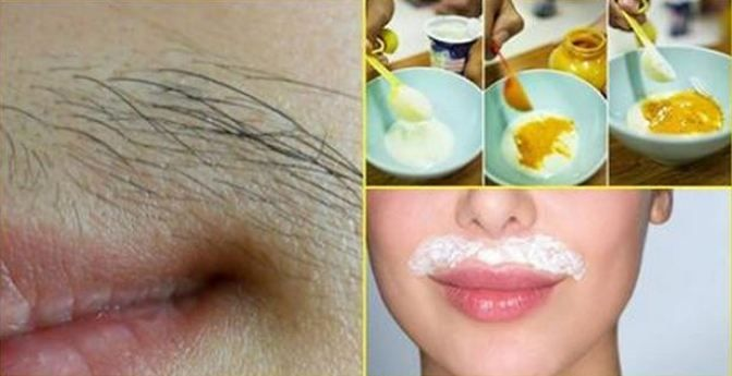 Unwanted hair is a cause of embarrassment for many. While you need to get rid of unwanted hair at hidden places like armpits for hygienic purposes and to get rid of body odor, the hair on your face…