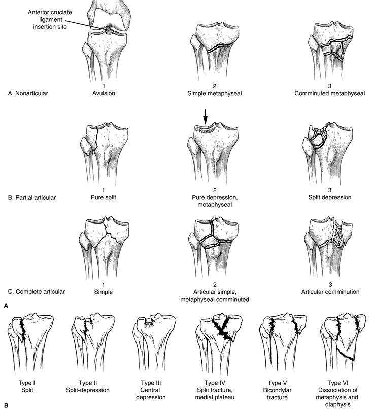 18 best knees images on Pinterest   Bones, Physical therapy and Anatomy