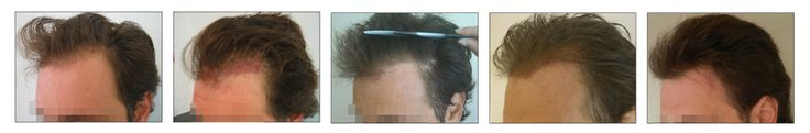 FUE Hair Transplant  - phases left side.