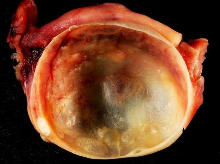 Imagen de un quiste ovárico benigno  Este tipo de quistes se forman por acumulación de líquido dentro de un ovario. El folicular es el más común y puede alcanzar un tamaño desde 20 a 24 milímetros hasta 5 centímetros; aunque en raras ocasiones, van más allá de los 10 cm.