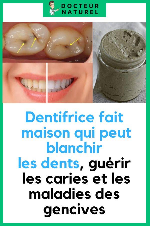 dentifrice fait maison qui peut blanchir les dents gu rir. Black Bedroom Furniture Sets. Home Design Ideas