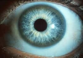 Kayser fleisher ring - OJOOO lo vemos en enfermedad de Wilson, no en la hemocromatosis
