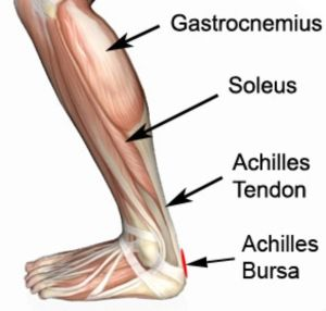 Achilles Bursitis Anatomy: The muscle group at the back of your lower leg is commonly called the calf. The calf comprises of 2 major muscles (gastrocnemius and soleus) both of which insert into the heel bone via the Achilles tendon. Between the Achilles tendon and skin lies a bursa known as the Achilles bursa (figure 1