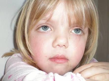noonan syndrome - Google Search