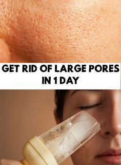 Next, I will share with you some tricks for how to get rid of large pores, in just 1 day, with natural ingredients, that you surely have them at home.