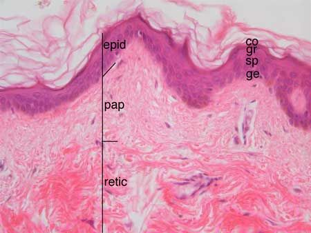 The 400X image shows the epidermis and the outer part of the dermis. The dermis has two layers, a thinner outer layer called the papillary layer and a thicker deep layer called the reticular layer. The papillary layer has fine collagen fibers. The reticular layer has much thicker bundles of collagen. epid = epidermis, pap = papillary layer of dermis, retic = reticular layer of dermis, Layers of the epidermis: ge = stratum germinativum, sp = stratum spinosum, gr = stratum granulosum, co…