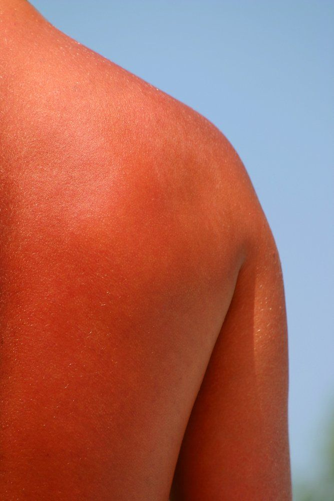 10 Best Treatments For Sunburns