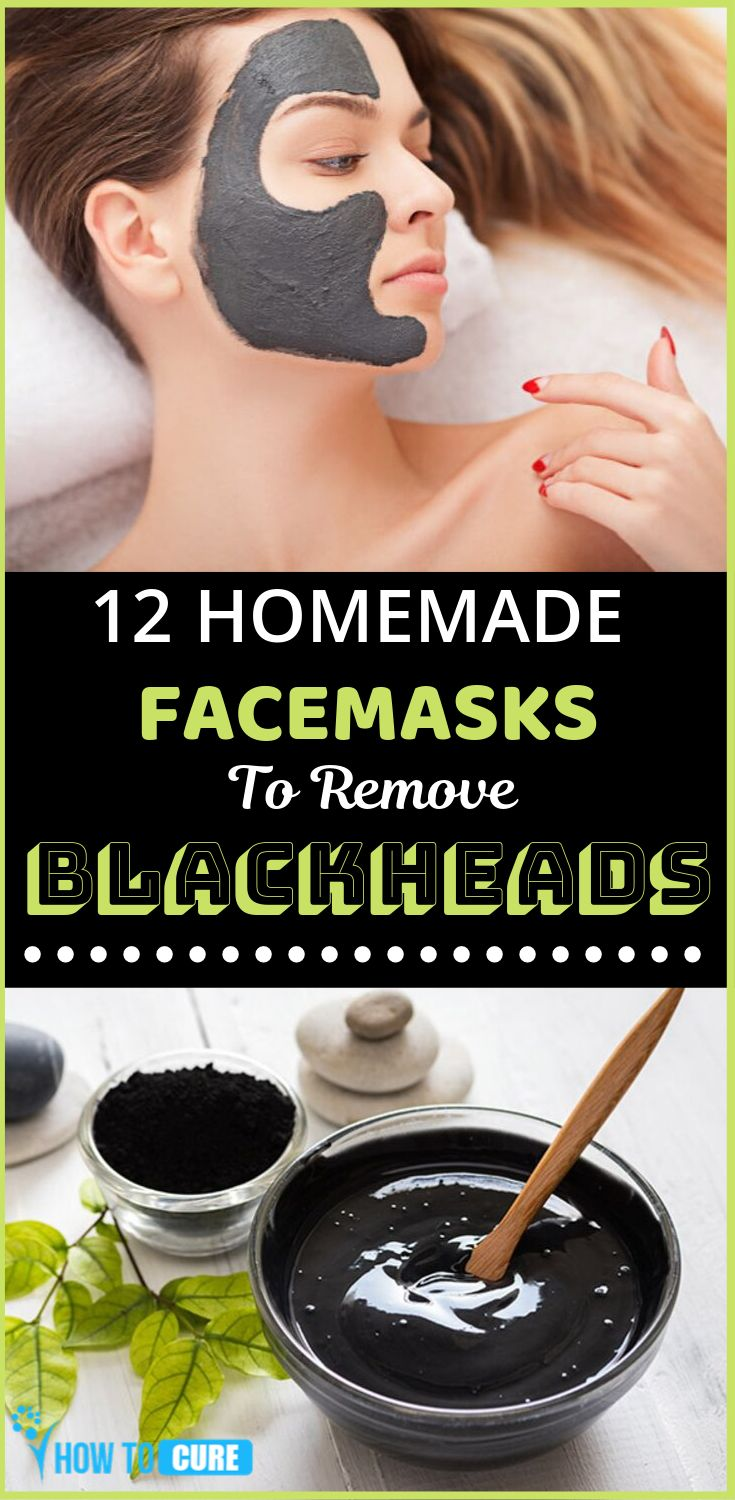 How To Get Rid Of Blackheads Simple & Efficient At Home – HowToCure