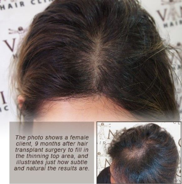 There are many causes for female hair loss. With the correct diagnosis, there are a number of treatments that can be used to treat female hair loss : medical, surgical and non-surgical. Treatments for women tend to differ slightly from male hair loss treatments and a specialist should always be consulted before embarking on any treatment process.  #vincihairclinic #hairloss #hairtransplant #femalepatternbaldness #femalepatternhairloss