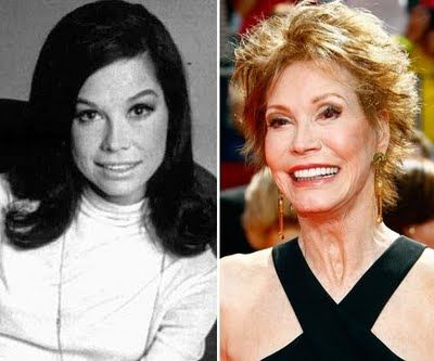 mary tyler moore plastic surgery OMG WTF Did You Do to Your Face?!: Celebrity Plastic Surgery Gone Wrong