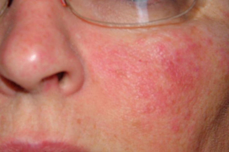 how to get rid of heat rash fast on face