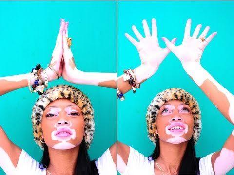 Vitiligo: A Skin Condition not a Life Changer #beautiful #Vitiligo #Beauty #wise #inspiration #TGAW