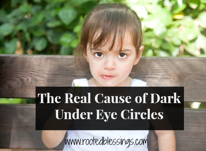 The Cause of Dark Under Eye Circles.  These under eye circles are your body telling you that your immune system is overactive.  When your intestinal flora is not fully populated with good, healthy bacteria it leaves room for the mucus membrane on the gut wall to become compromised.  Dark under eye circles are just one allergic symptom