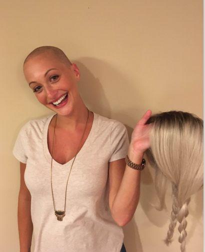 Becky: Alopecia areata, Never took my Beauty away