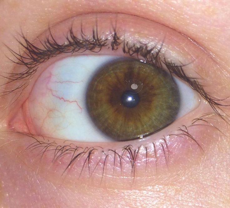 Brown Hazel Green with central heterochromia?? what are they help pls