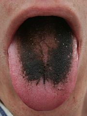 Why Is My Tongue Black! #ask #jeevea http://ask.remmont.com/why-is-my-tongue-black-ask-jeevea/  #ask jeeeves # Why Is My Tongue Black?! Have you ever felt sick, taken some Pepto Bismol and then a while later, had a black tongue? You may be thinking you ve eaten something strange, or that you are having…Continue Reading