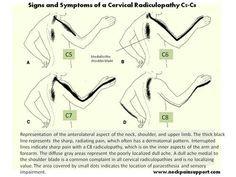 terapia steroidea artrite reumatoide