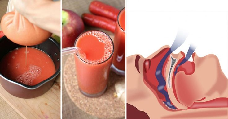 1 Remedy to Naturally Get Rid of Snoring and Sleep Apnea Fast