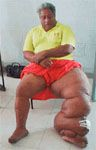 Now, a cure for #Elephantiasis is possible in #India   #ayurvedatreatment #filariasis