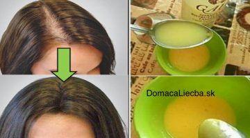 Zaskočte všetkých lekárov: S týmto porastú vaše vlasy rýchlejšie než kedykoľvek predtým