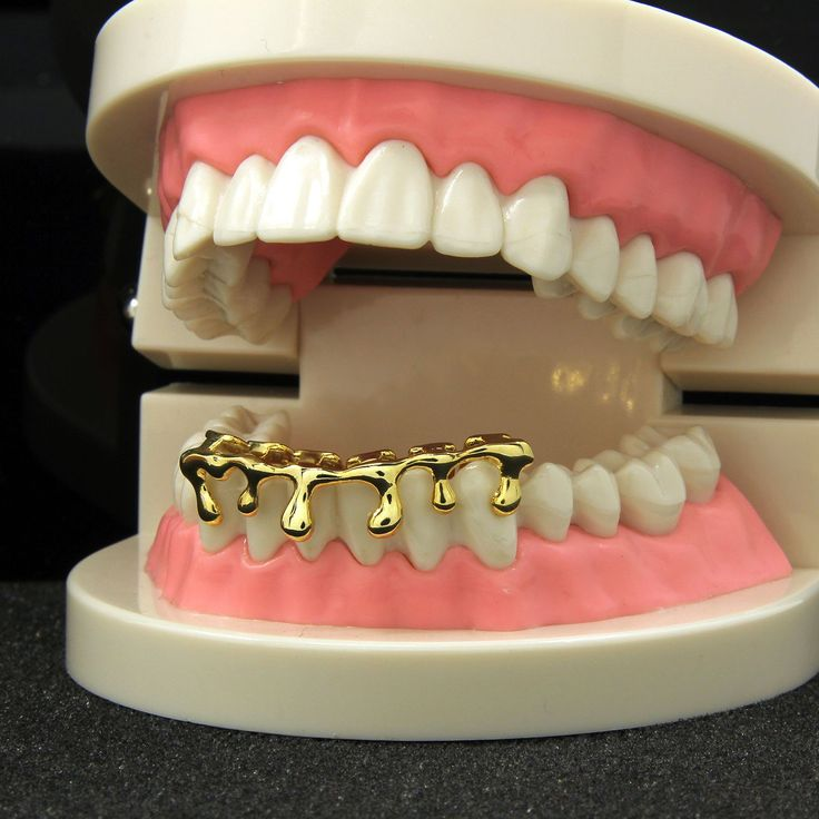 *50% OFF* - BEST SELLR! Drip Grillz 14K GP Bottom Grillz