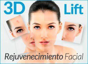 Hilos Tensores Espiculados Cog 3DLift® - MEDICINA ESTETICA - Clinicas Vicario