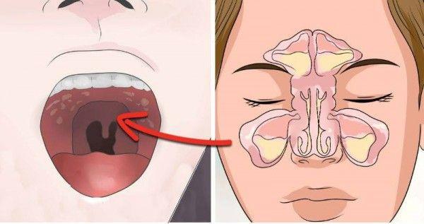 how to get rid of chronic sinus headaches