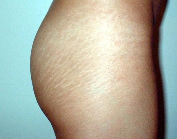 Learn how to get rid of stretch marks on the thighs.