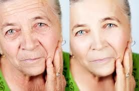 Confidential Facelift Gymnastics Exercise Regimens - This Is What They Will Do For Your Natural Chinese Acupressure Facelift