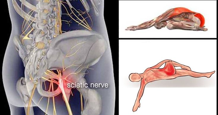Sciatica pain is an extremely uncomfortable and unbearable health issue and can be a result of an injury, spinal stenosis, ruptured disk, etc. As soon as one experiences pain in the sciatic nerve, s/he needs to immediately check the lower back and hips. According to Dr. Mark Kovach, a stretch that c…