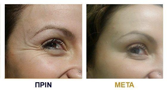 Botox πριν & μετά
