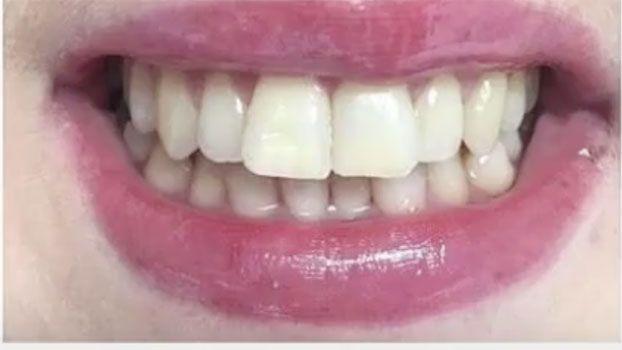 BioWhite - Il futuro dei denti bianchi