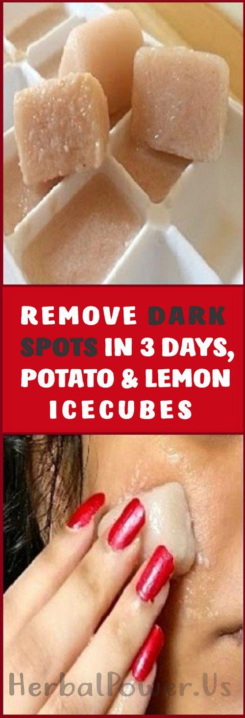 Remove Dark Spots in 3 Days, Potato & Lemon Juice Ice cubes !!