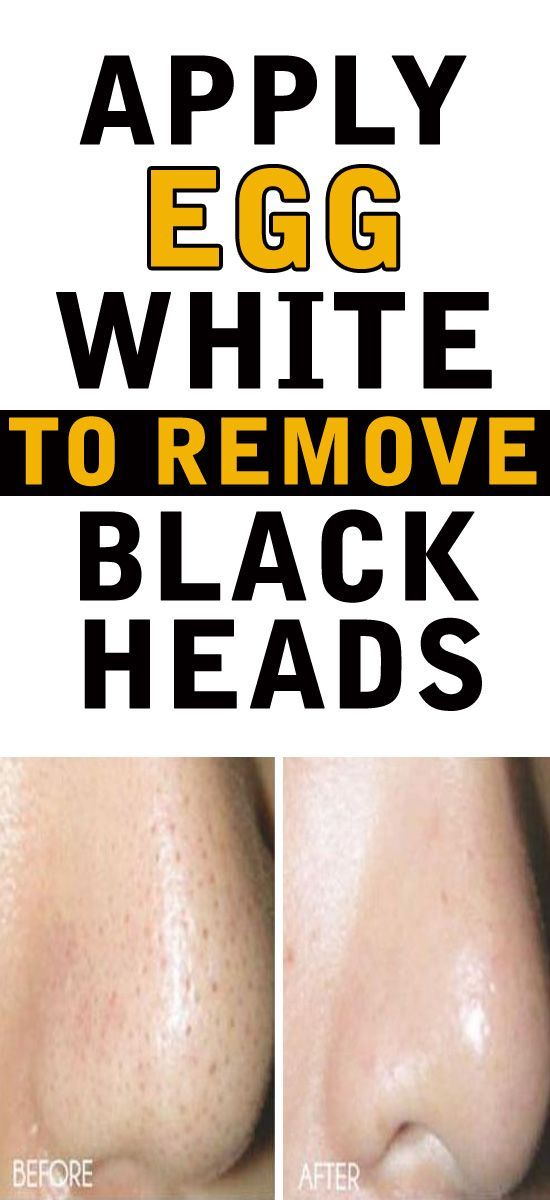 How to Use Egg White for Blackheads – 12 Face Mask Recipes