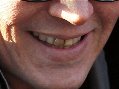 Johnny Depp (Teeth for Black Mass)