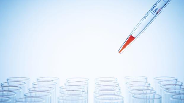 El análisis de sangre que detecta un tumor cerebral y evita la biopsia