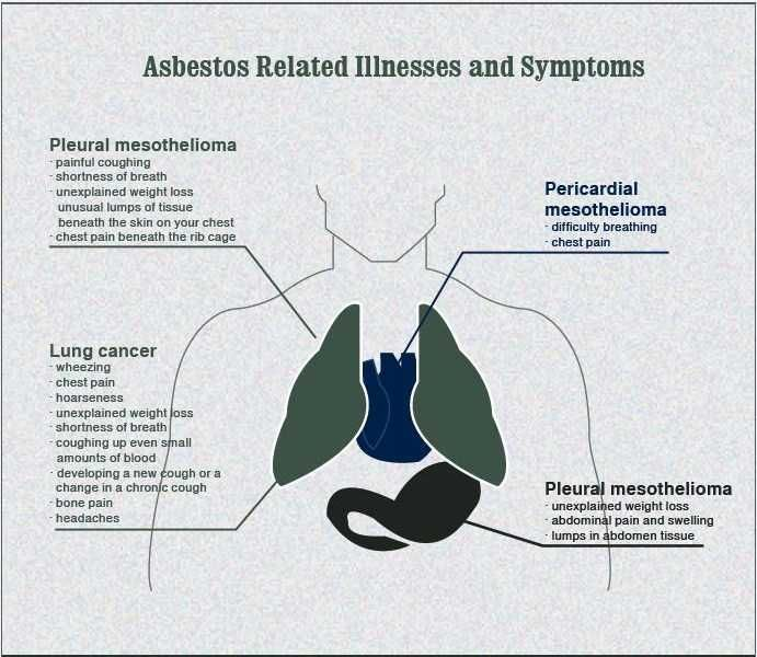 17 Best images about Mesothelioma on Pinterest  Radiation therapy, Lungs and Radiology