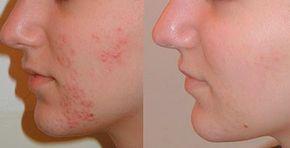 Voila une recette d'un masque visage 100% naturel pour traiter les boutons d'acné et leurs cicatrices d'une manière efficace et saine en 3 jours