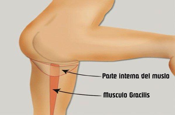 dolor lado interna muslo