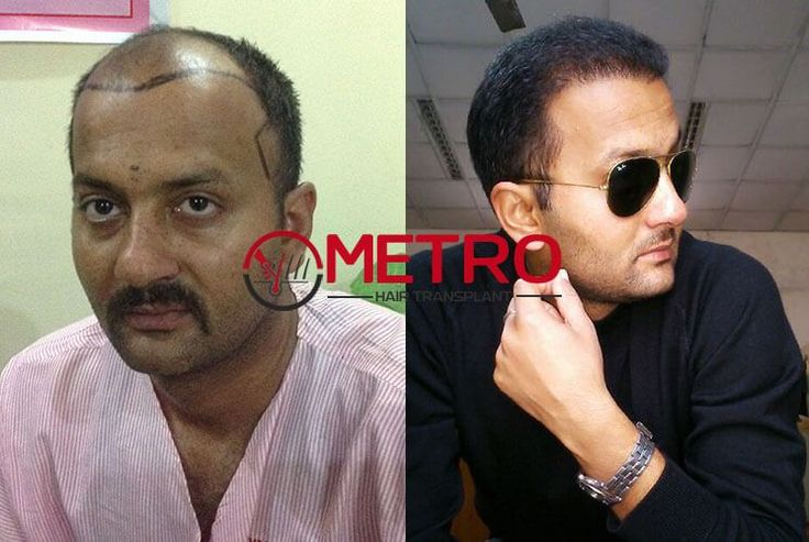 Best and cost effective hair loss treatments through hair transplant surgery is done at Metro Hair Transplant Centre. It is one of the most renowned clinics providing the desired results for hair transplant surgery using the latest and most advanced techniques. For more details, you just need to visit our website.