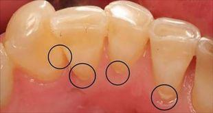 Débarrassez-vous de la plaque dentaire et de la mauvaise haleine juste en utilisant un seul ingrédient purement naturel !