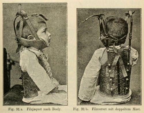"""Treatment of kyphosis with Beely's """"Filzcorsets"""", from August Schreiber's Allgemeine und specielle orthopädische Chirurgie, 1888"""