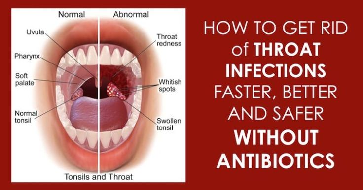 10 Effective Home Remedies To Treat A Strep Throat Infection