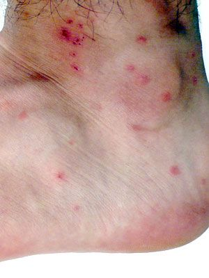 Many bug bites look similar, but there are differences. Learning to identify the type of bug bite or sting you've gotten will help you get the proper treatment.