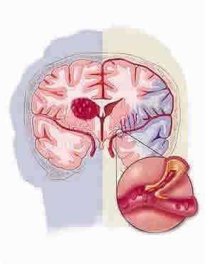 Hersenbloeding. Bloedvat in de hersenen is opengebarsten. (ookwel: beroerte) Symptomen: gezicht/arm/been is gevoelloos, verward, moeite met praten, niet goed kunnen zien/evenwicht houden. Oorzaak/risicofactoren: hoge bloeddruk, roken, hoog cholesterol gehalte, diabetes, overgewicht, ongezonde voeding, veel stress.      Behandeling: onderzoek in het ziekenhuis, soms een operatie. Daarna revalidatiefase gericht op het herstel.