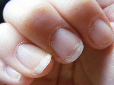 Impacchi naturali per le unghie che si sfaldano.