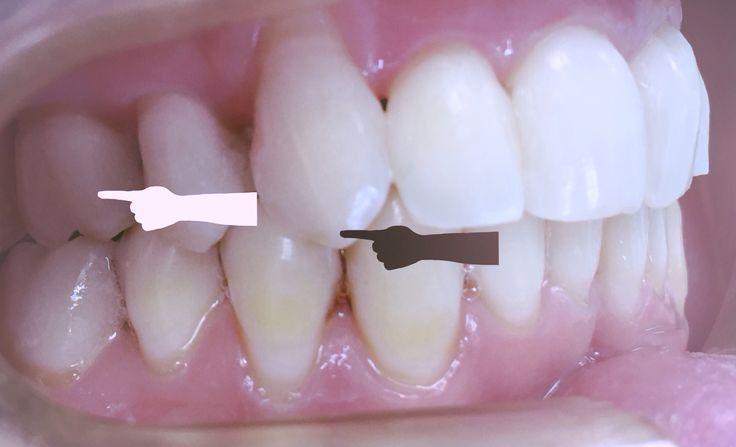 En Adultos en ocasiones debemos hacer extracciones asimétricas para conseguir un resultado óptimo. #Ortodoncia #Adultos