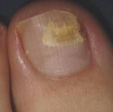 http://mkthlth2.digimkts.com  This is the best thing on the market today  how to clear toe fungus  Nails Treatment   Women have been known to use artificial nails to cover up nail fungus infection. Unfortunately, this does not cure nor solve the problem. Instead, it worsens because nail fungus grows in a favorable environment in which there is a lot of moisture